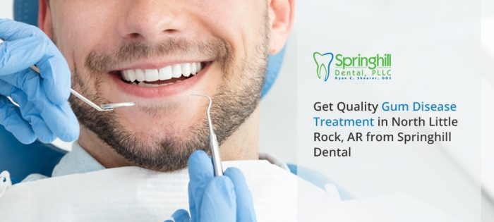 Get Quality Gum Disease Treatment in North Little Rock, AR from Springhill Dental