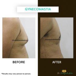 Gynecomastia Treatment in Hyderabad