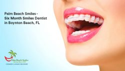 Palm Beach Smiles – Six Month Smiles Dentist in Boynton Beach, FL