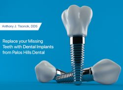 Replace your Missing Teeth with Dental Implants from Palos Hills Dental