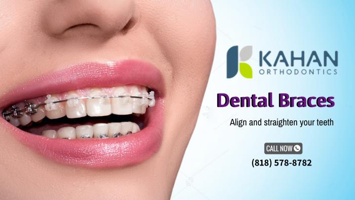 Straighten Your Teeth with Kahan Orthodontics