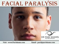 Facial Paralysis At Pari Shams