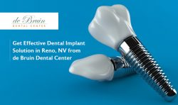 Get Effective Dental Implant Solution in Reno, NV from de Bruin Dental Center