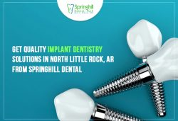 Get Quality Implant Dentistry Solutions in North Little Rock, AR from Springhill Dental