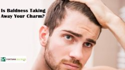 Is Baldness Taking Away Your Charm?