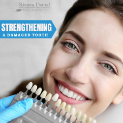 Restore the Natural Strength to your Teeth