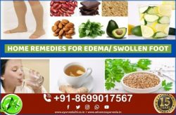 Ayurvedic Treatment for Swelling