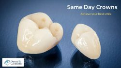 Ceramic Dental Crowns for Your Teeth