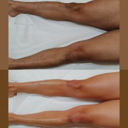 Male Waxing Auckland