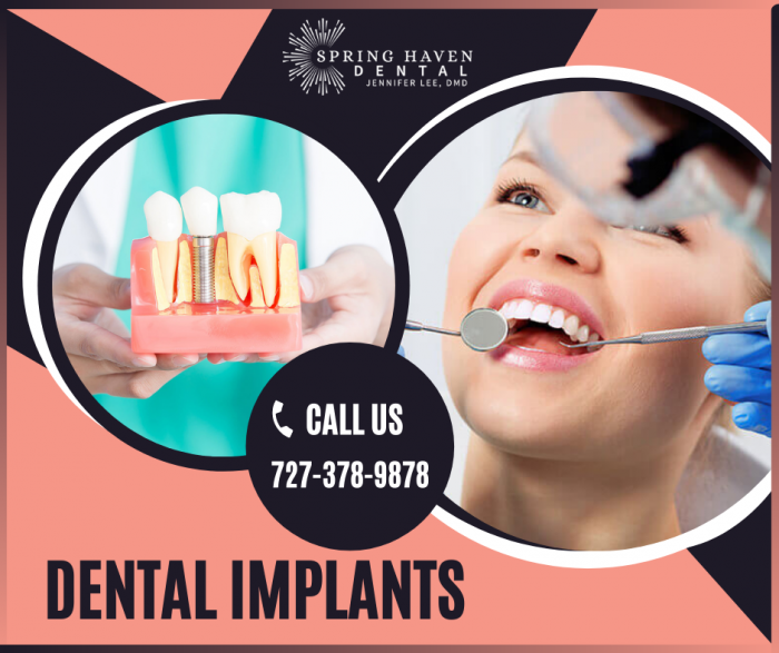 Long-Term Solutions for Missing Teeth