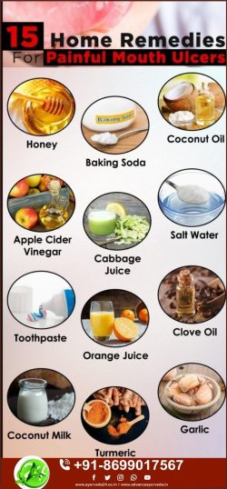 Herbal Remedy for Mouth Ulcers