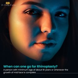 Rhinoplasty Surgery in Hyderabad