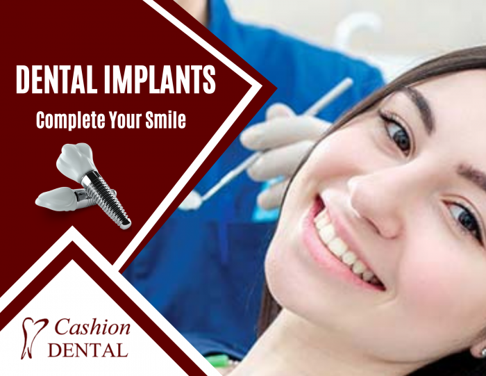 Modern Solution for Your Tooth Replacement