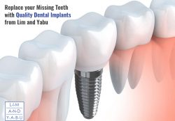 Replace your Missing Teeth with Quality Dental Implants from Lim and Yabu