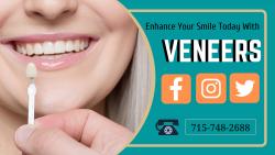 Veneers Dental Treatment Services