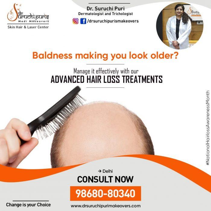 Advanced Hair Loss Treatment in Delhi