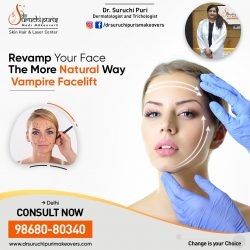 Vampire Facelift Treatment in Delhi