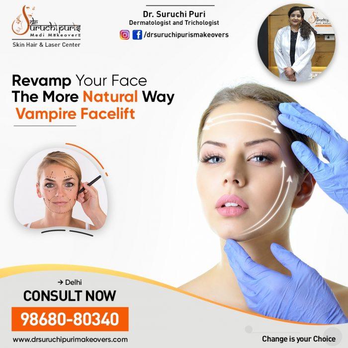 Vampire Facelift Treatment in Delhi