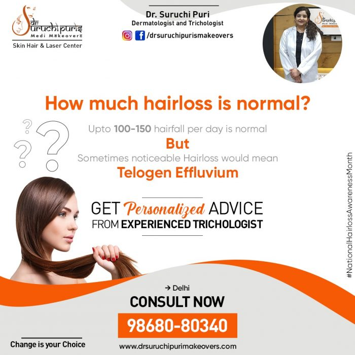 Best Hair Clinic in Delhi