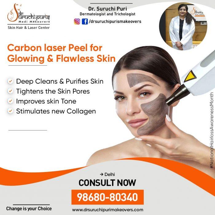 Carbon Laser Peel Treatment in Delhi