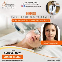 Reduce Dark Spots and Acne Scars with the Best Skin Specialist in Delhi