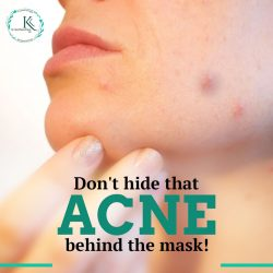 Acne Treatment in Hyderabad
