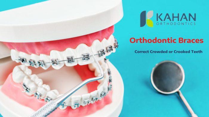 Advanced Orthodontics to Straighten Your Teeth