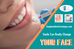 Bringing Life to Your Smile