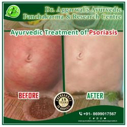 Ayurvedic Treatment for Psoriasis