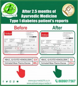 Ayurveda Treatment for Type 1 Diabetes