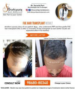 FUE HAIR TRANSPLANT IN DELHI- BEST DERMATOLOGIST IN DELHI- DR. SURUCHI PURI