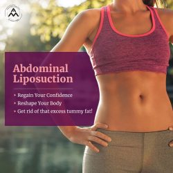 Tummy Tuck Surgery In Delhi