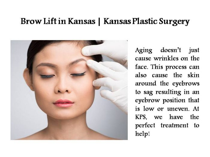 Brow Lift in Kansas | Kansas Plastic Surgery