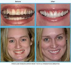 One of The Best Veneer Dentist In Houston