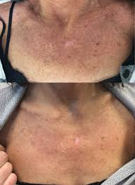 What conditions can a body peel help to improve?