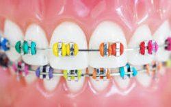 Kid Friendly Dentist Near Me