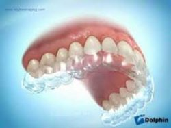 How To Clear Retainers After Braces