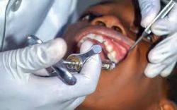 Emergency Dental Extraction Dentist