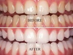 Best Teeth Whitening Services Perth & Subiaco — Tx Smiles