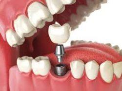 Teeth Whitening Dentist Near Me