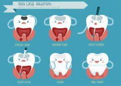 Walk In Dental Clinic
