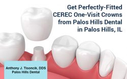 Get Perfectly-Fitted CEREC One-Visit Crowns from Palos Hills Dental in Palos Hills, IL