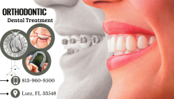 Orthodontic Treatment Can Change Your Appearance