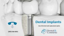 Rejuvenate Your Smile with Dental Implants
