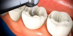 Root Canal in Houston, TX