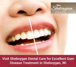 Visit Sheboygan Dental Care for Excellent Gum Disease Treatment in Sheboygan, WI