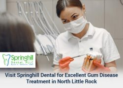 Visit Springhill Dental for Excellent Gum Disease Treatment in North Little Rock