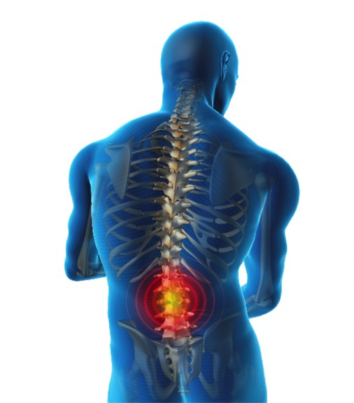 Chronic Lower Back Treatment Options