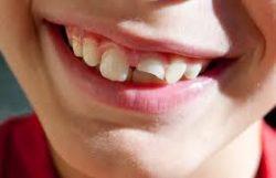 Broken Tooth Treatment In Houston