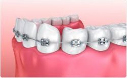 Best Dental Braces Near Me